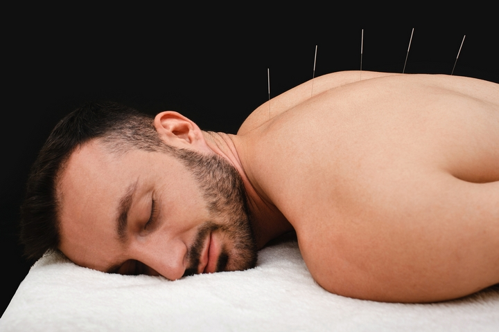 6 Interesting Acupuncture Facts and Its Health Benefits